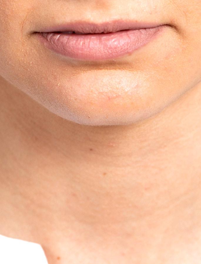 Symptome im Hals - usterMed hno