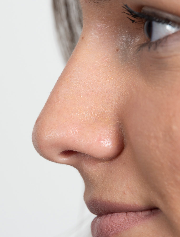 Nasenflügeln trockene haut komisches Symptom,