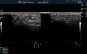 Sonografie und Ultraschall bei usterMed hno
